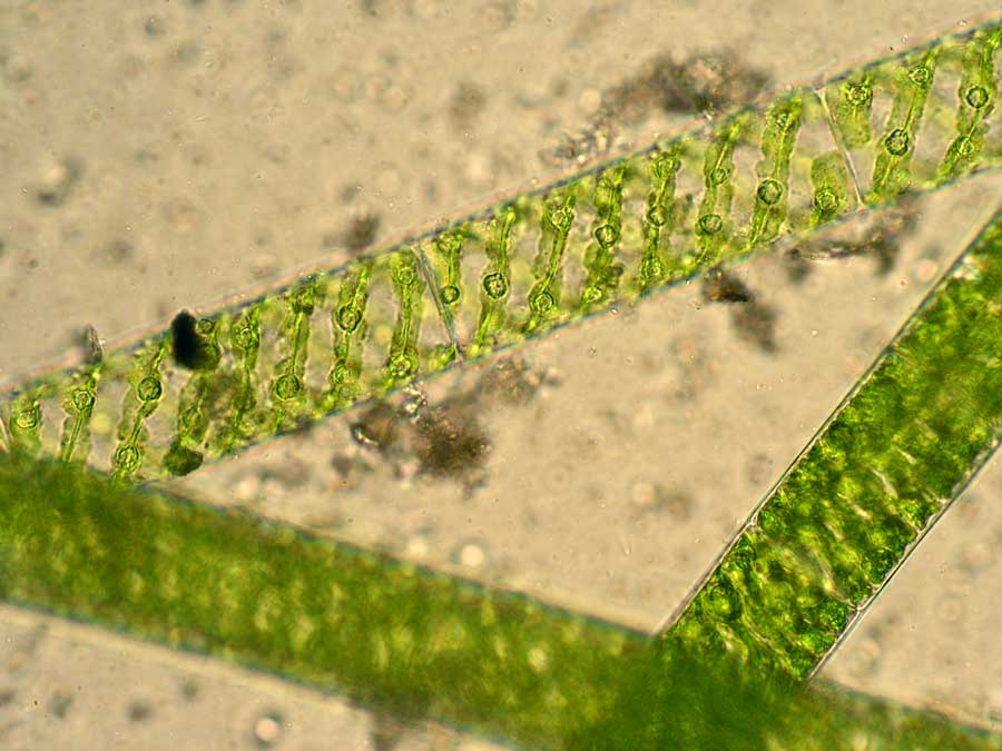 Spirogyra  Structure  U0026 Characteristics With Labeled Diagram